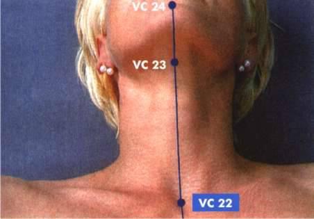 VC 22 - ponto para tose e etc